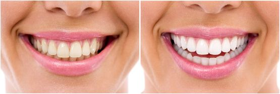 Before and after whitening treatment teeth close up